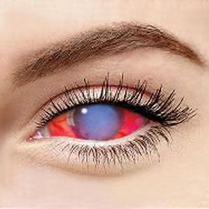 Blue+Red Sclera 069 / 22mm / 1495